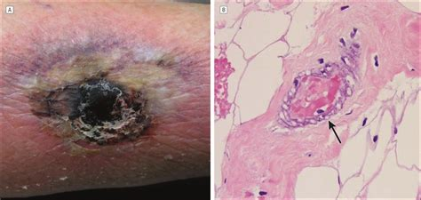 Calciphylaxis Associated With Chronic Inflammatory